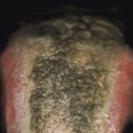 What is Black Hairy Tongue?