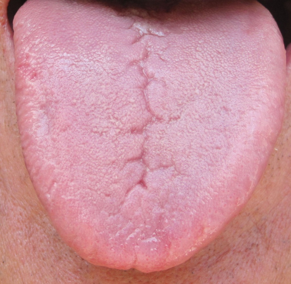 What Is Fissured Tongue? - Geographic Tongue