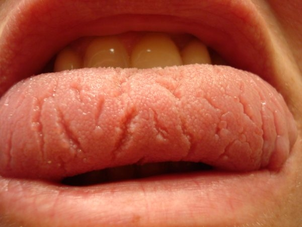 Teri- Fissures - Geographic Tongue   Healthy Tongue Secrets