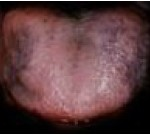 Pigmented Tongue