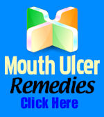 The Truth About Mouth Ulcers