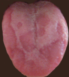 """an overview of oral thrush and its different types Ing strings were """"oral candidiasis"""", """"inhaled cor-  in summary, the overall   oral candidiasis (oc) incidences in different study types."""