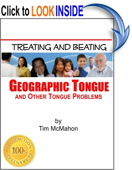 Healthy Tongue Secrets Revealed - Geographic Tongue  Healthy Tongue Secrets