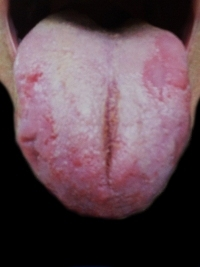 beefy, scalloped - Geographic Tongue   Healthy Tongue Secrets